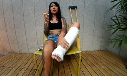 Tattooed Asian Model With Short Cast Leg (SCL)